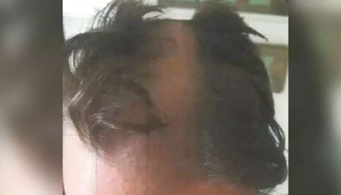 Barber snips man's ear, shaves bald patch down middle of head