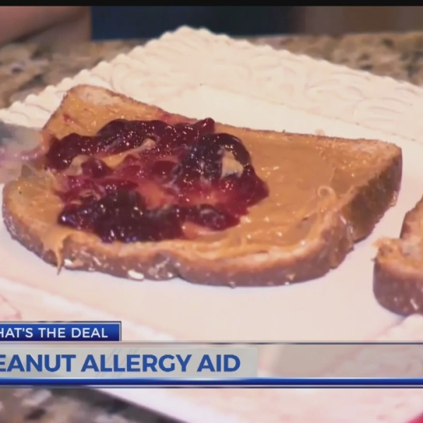 New peanut allergy treatment on the horizon