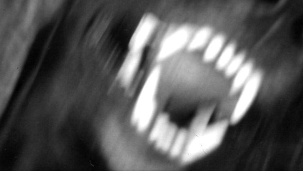 krdo dog attack generic_1522781569366.JPG.jpg