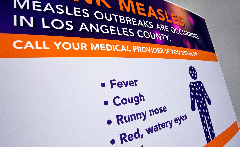 Measles_California_18378-159532.jpg71364885