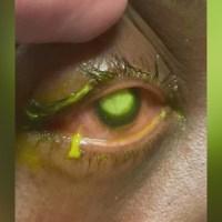 eye gunk1_1556916190837.jpg.jpg